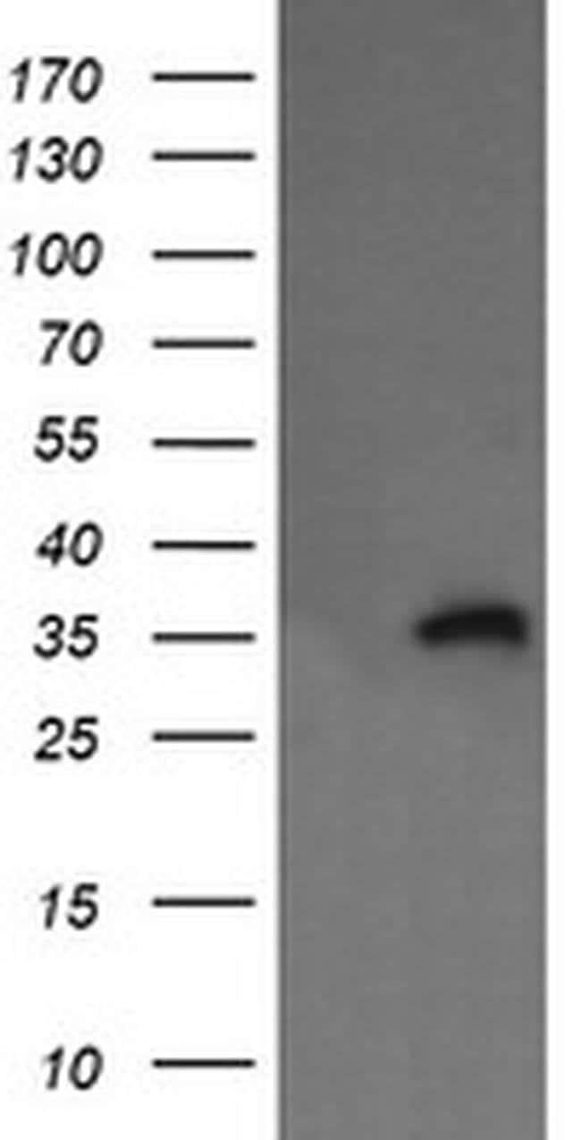 KIF25 Mouse anti-Human, Clone: OTI2B4, liquid, TrueMAB  100 µL; Unconjugated
