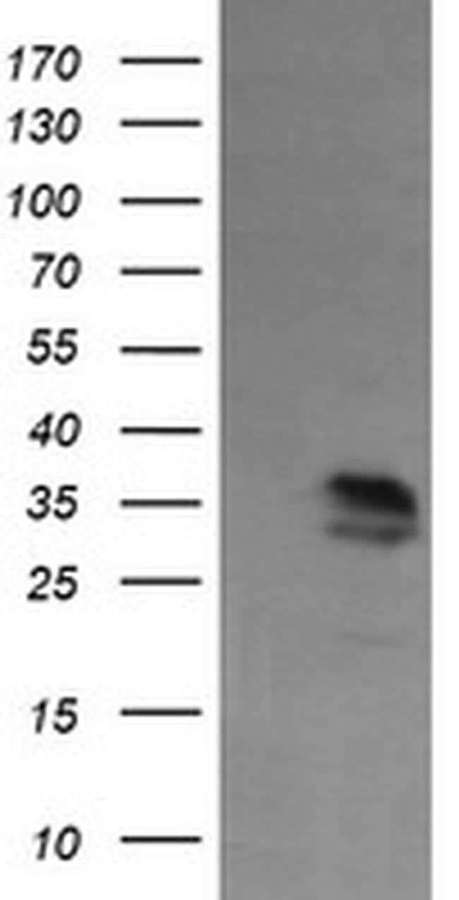 KIF25 Mouse anti-Human, Clone: OTI2F2, liquid, TrueMAB  100 µL; Unconjugated