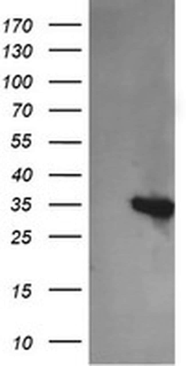 KIF25 Mouse anti-Human, Clone: OTI1H10, liquid, TrueMAB  100 µL; Unconjugated