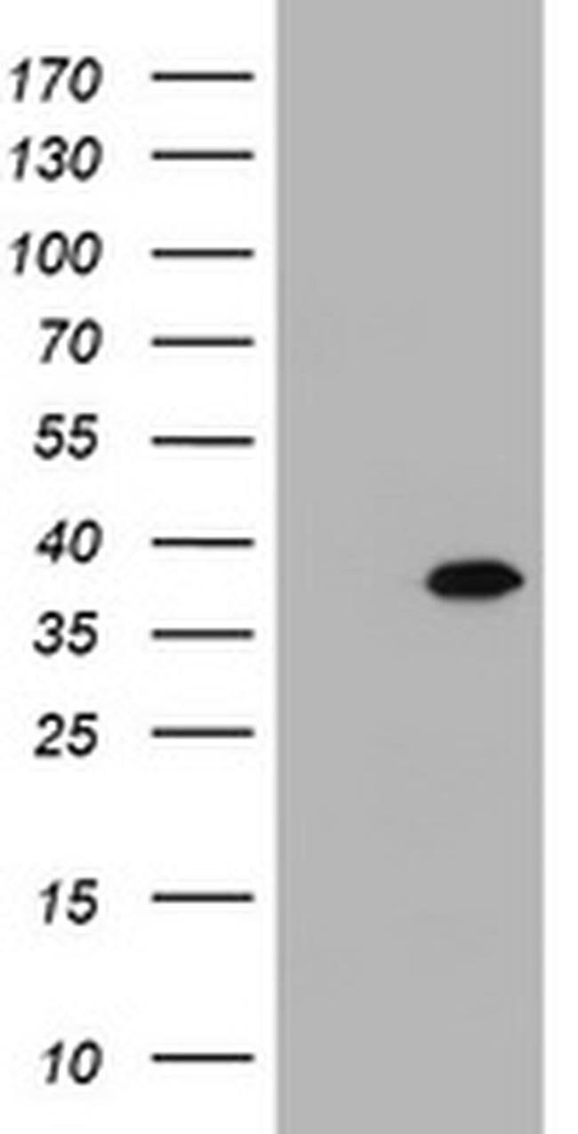 KIF25 Mouse anti-Human, Clone: OTI1A6, liquid, TrueMAB  100 µL; Unconjugated