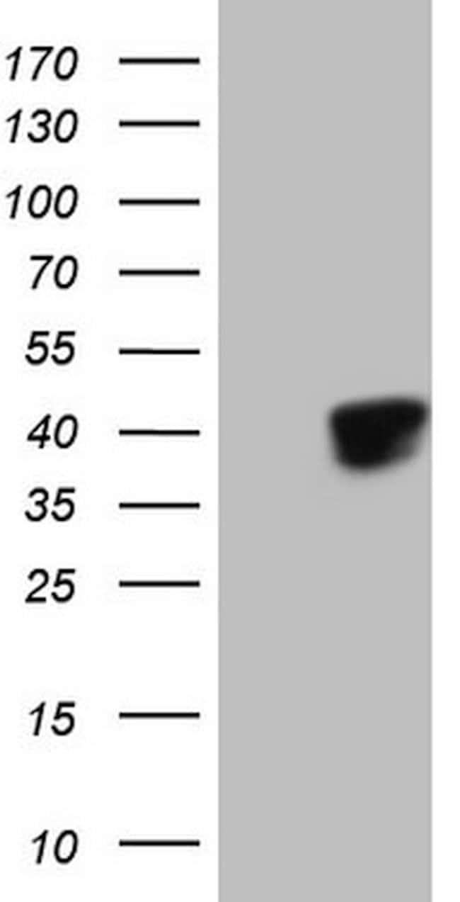 KLF2 Mouse anti-Human, Clone: OTI6A3, lyophilized, TrueMAB  100 µg;