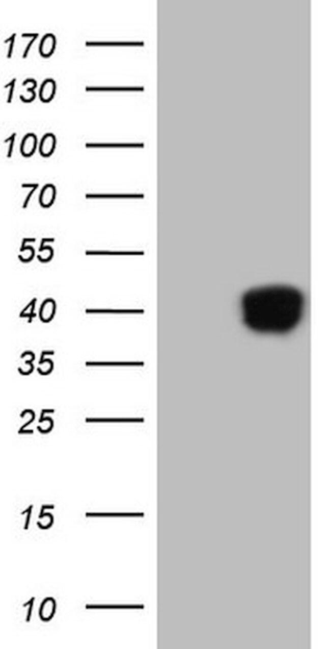 KLF2 Mouse anti-Human, Clone: OTI3D12, lyophilized, TrueMAB  100 µg;