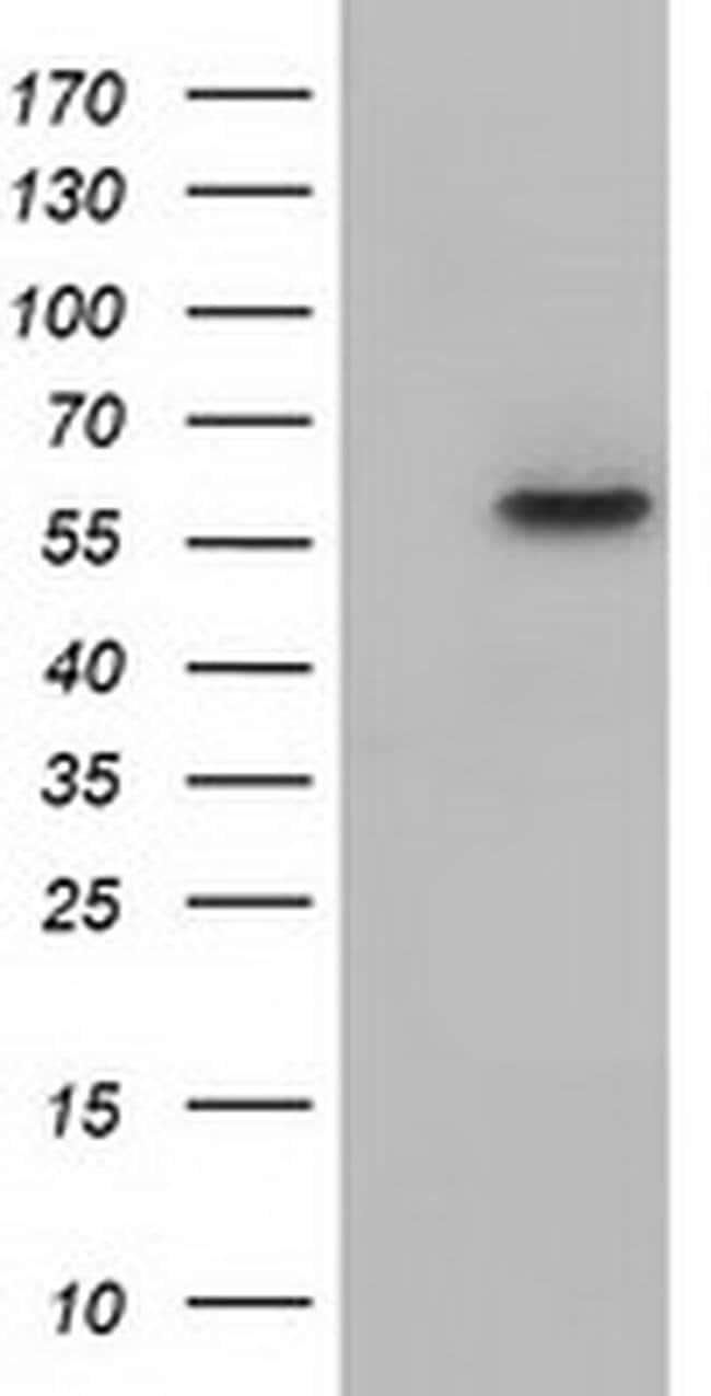 KLHL2 Mouse anti-Human, Clone: OTI8B8, liquid, TrueMAB  100 µL; Unconjugated