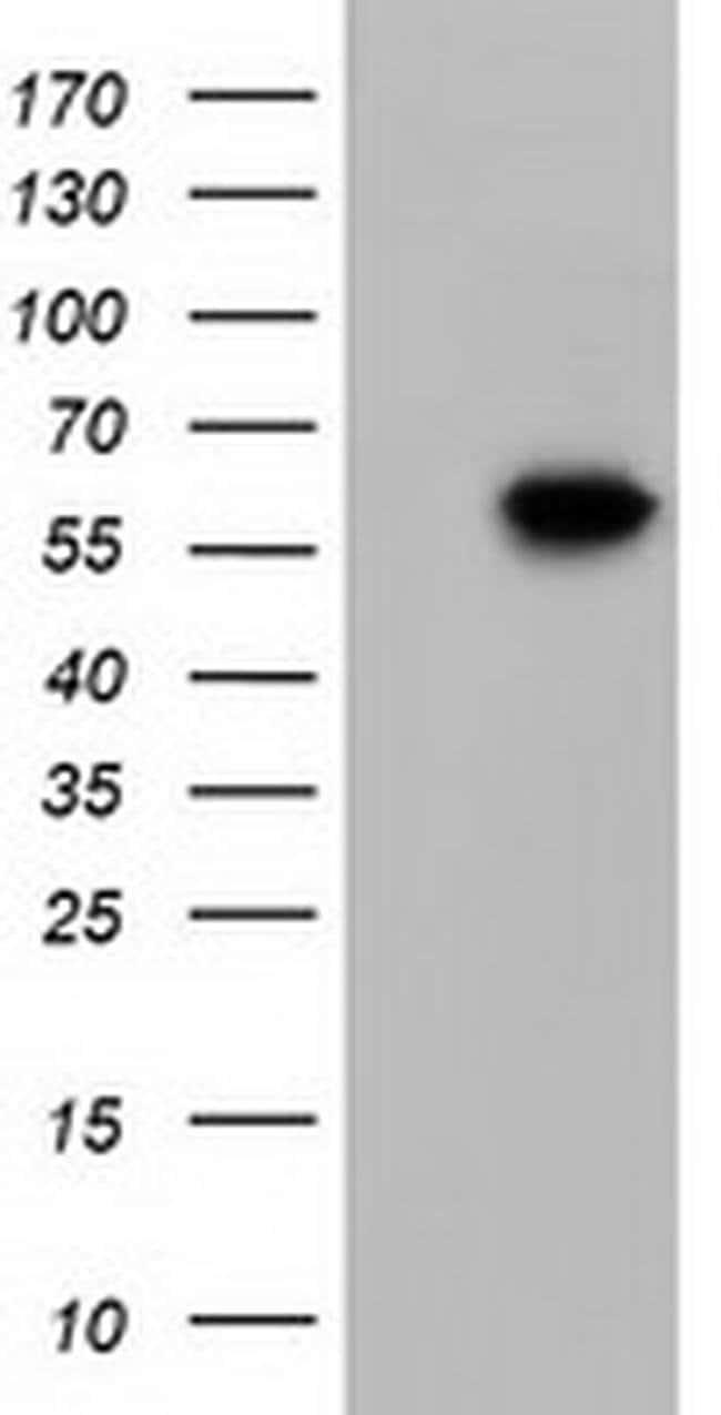 KLHL2 Mouse anti-Human, Clone: OTI6D8, liquid, TrueMAB  100 µL; Unconjugated