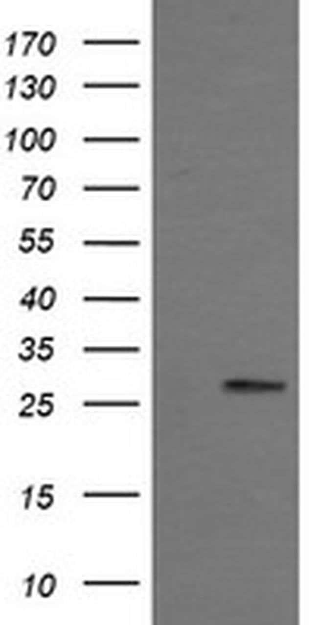 KLK8 Mouse anti-Human, Clone: OTI1F9, liquid, TrueMAB  100 µL; Unconjugated