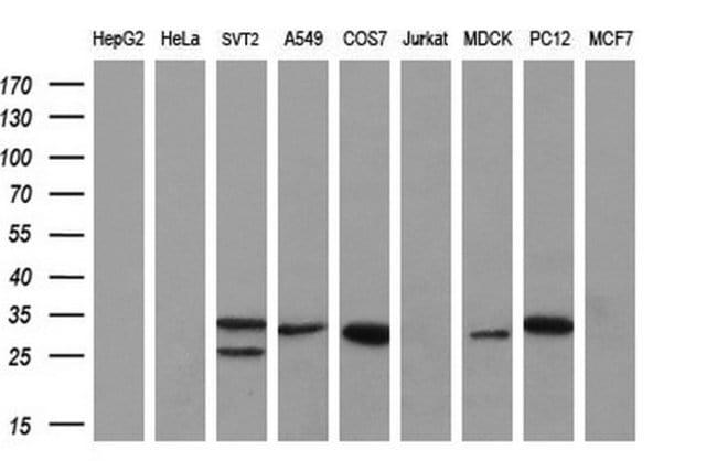 KLK8 Mouse anti-Human, Clone: OTI1D2, liquid, TrueMAB  100 µL; Unconjugated