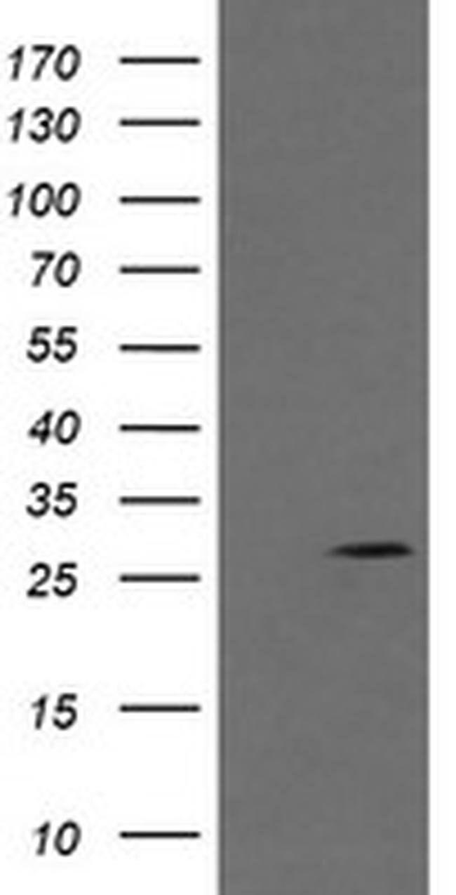 KLK8 Mouse anti-Human, Clone: OTI10D3, liquid, TrueMAB  100 µL; Unconjugated