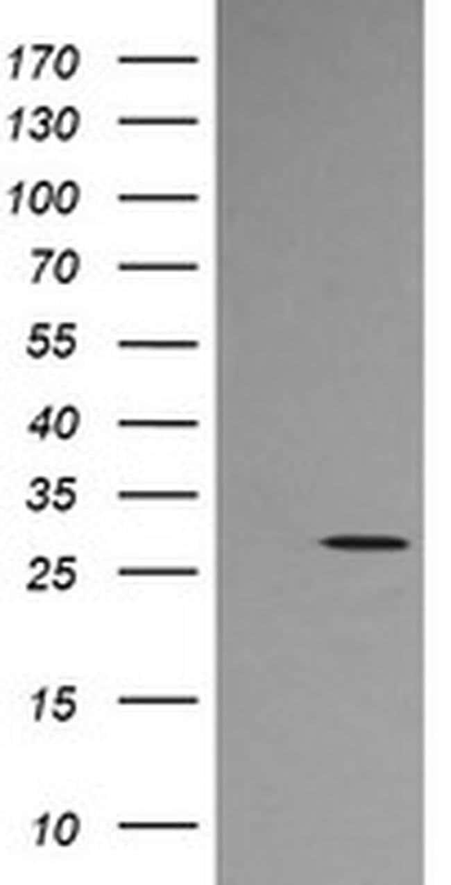 KLK8 Mouse anti-Human, Clone: OTI5B4, liquid, TrueMAB  100 µL; Unconjugated