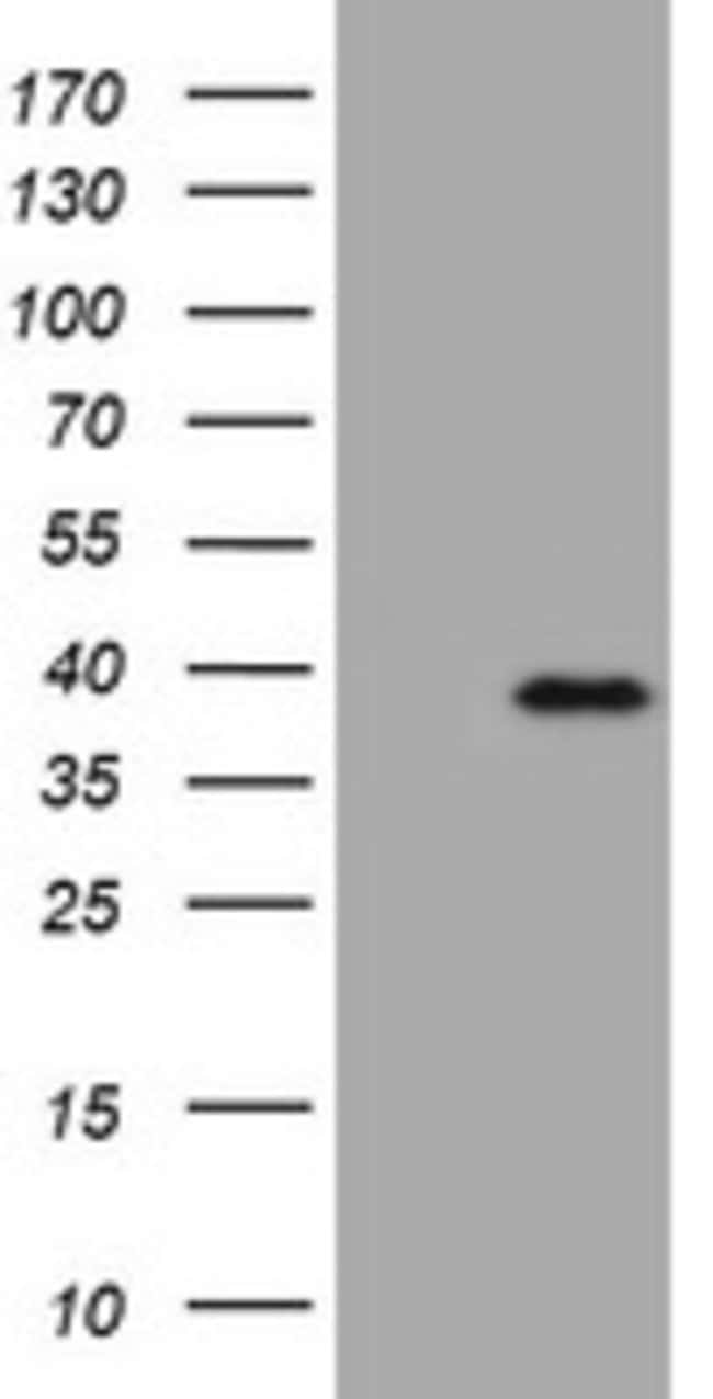 KLK8 Mouse anti-Human, Clone: OTI5D1, lyophilized, TrueMAB  100 µg;