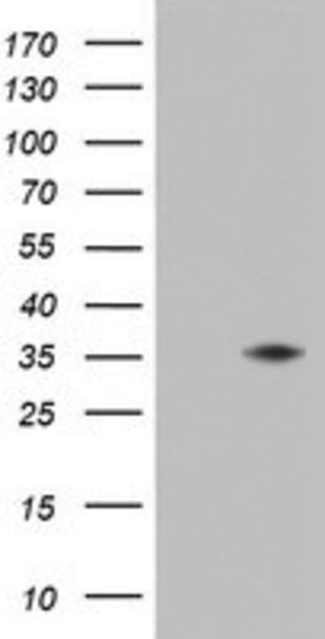 KLK8 Mouse anti-Human, Clone: OTI6D6, lyophilized, TrueMAB  100 µg;