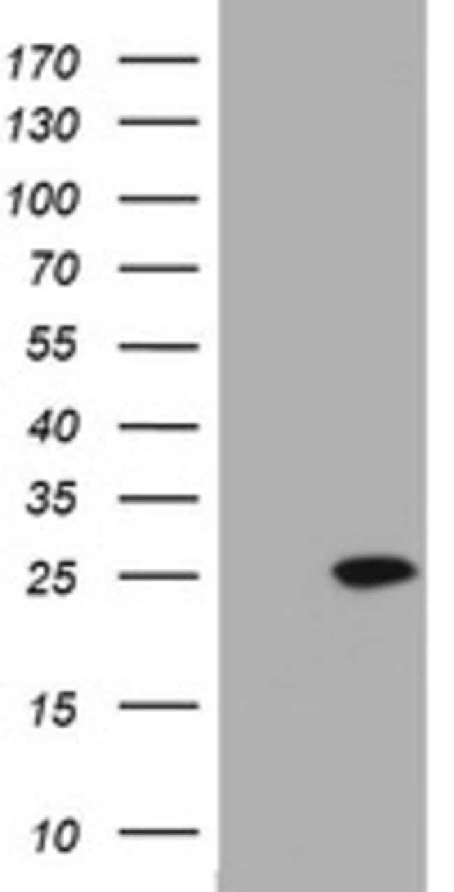KRAS Mouse anti-Human, Clone: OTI4B3, lyophilized, TrueMAB  100 µg;