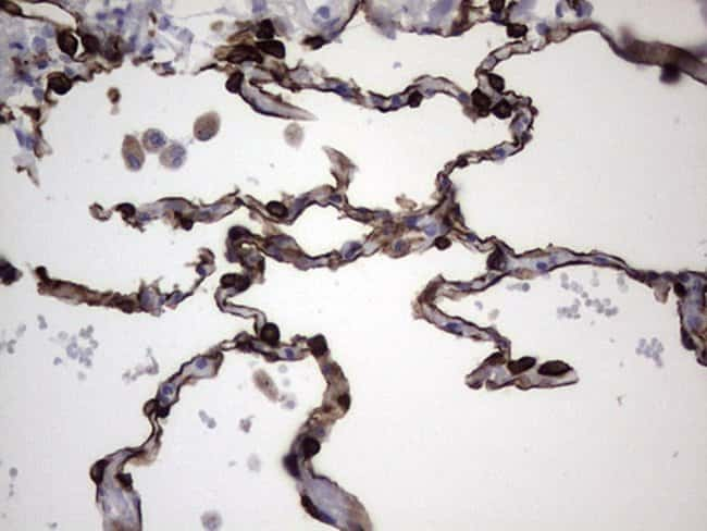 KRT19 Mouse anti-Human, Clone: OTI3D10, lyophilized, TrueMAB  100 µg;