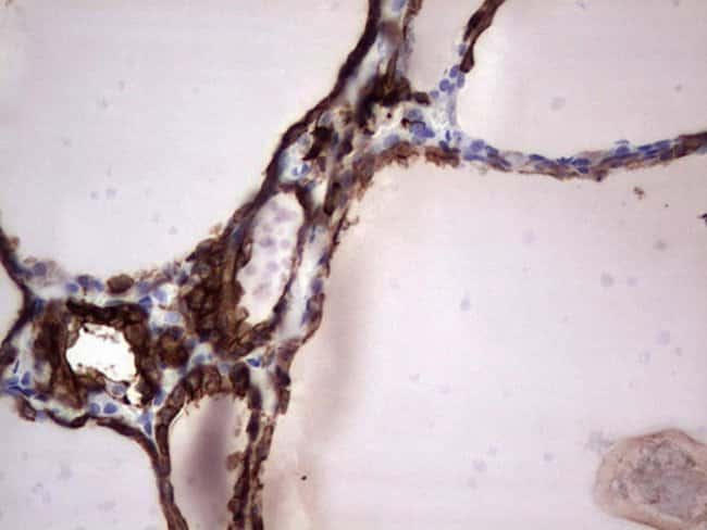 KRT19 Mouse anti-Human, Clone: OTI5G7, lyophilized, TrueMAB  100 µg;