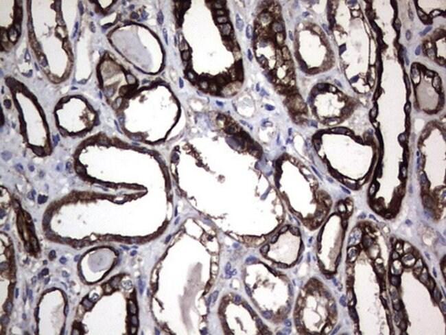 KRT7 Mouse anti-Human, Clone: OTI3E5, lyophilized, TrueMAB  100 µg;