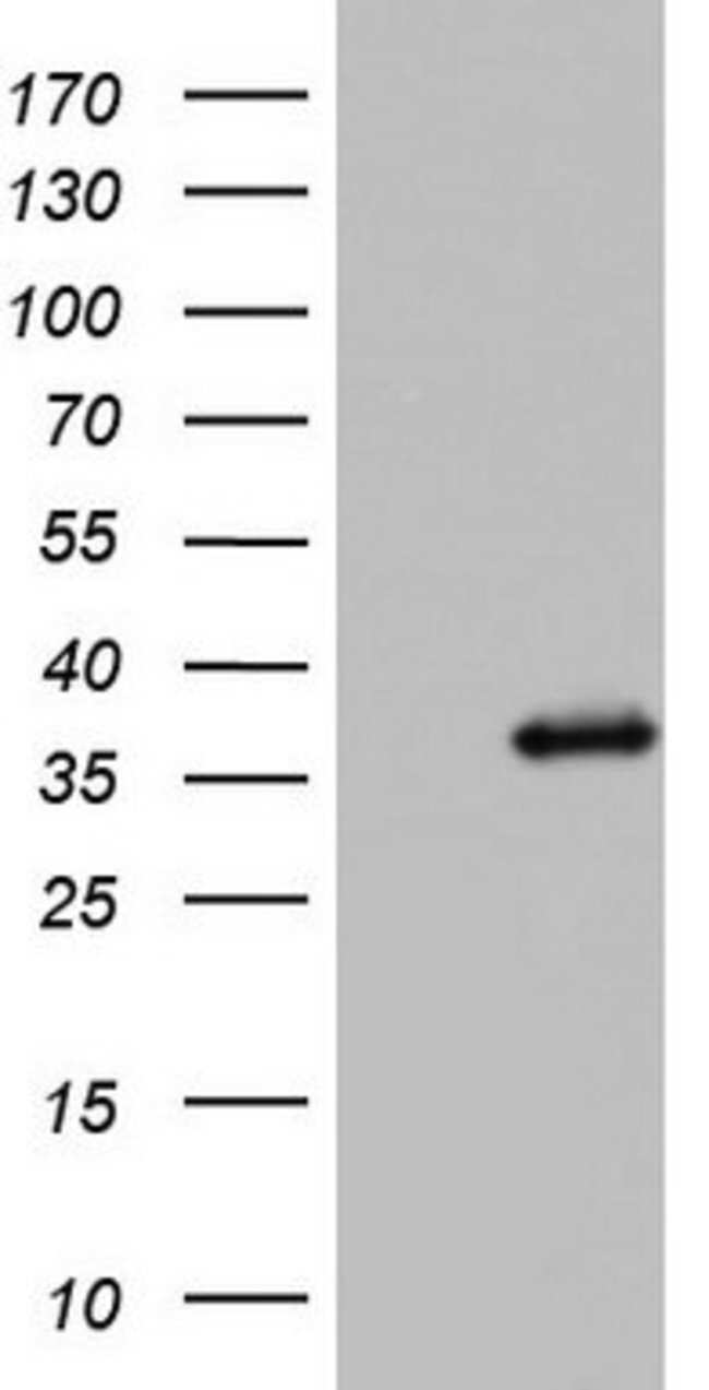 KYNU Mouse anti-Human, Clone: OTI5E4, lyophilized, TrueMAB  100 µg;