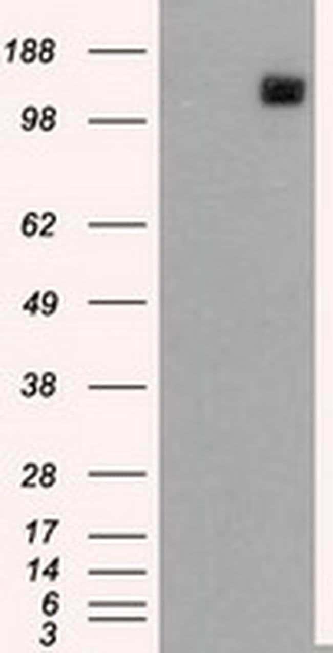 L1CAM Mouse anti-Human, Clone: OTI2H5, liquid, TrueMAB  100 µL; Unconjugated
