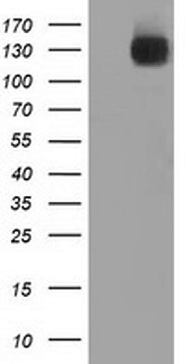L1CAM Mouse anti-Human, Clone: OTI1A8, liquid, TrueMAB  100 µL; Unconjugated