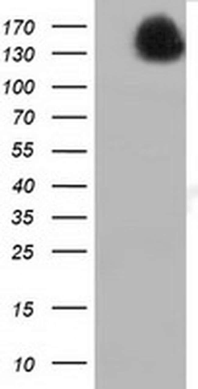 L1CAM Mouse anti-Human, Clone: OTI2A5, liquid, TrueMAB  100 µL; Unconjugated