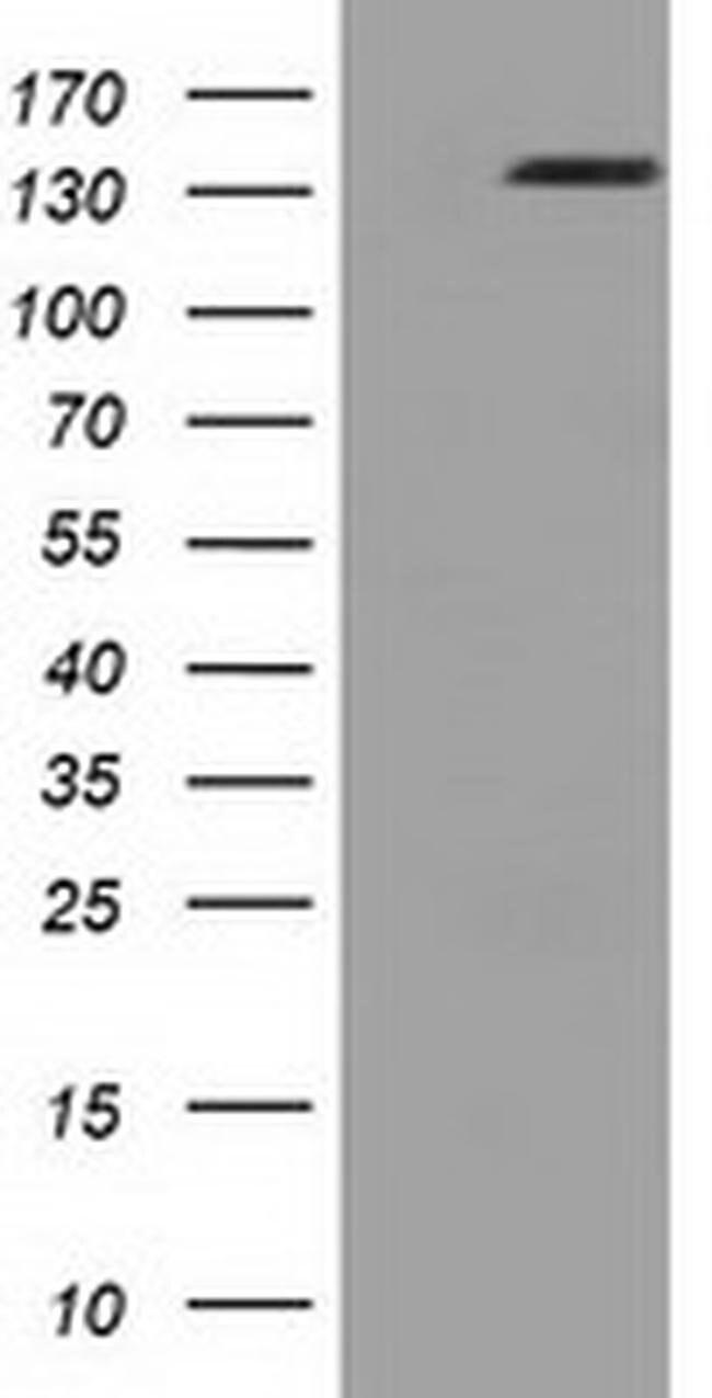 L1CAM Mouse anti-Human, Clone: OTI1G4, liquid, TrueMAB  100 µL; Unconjugated
