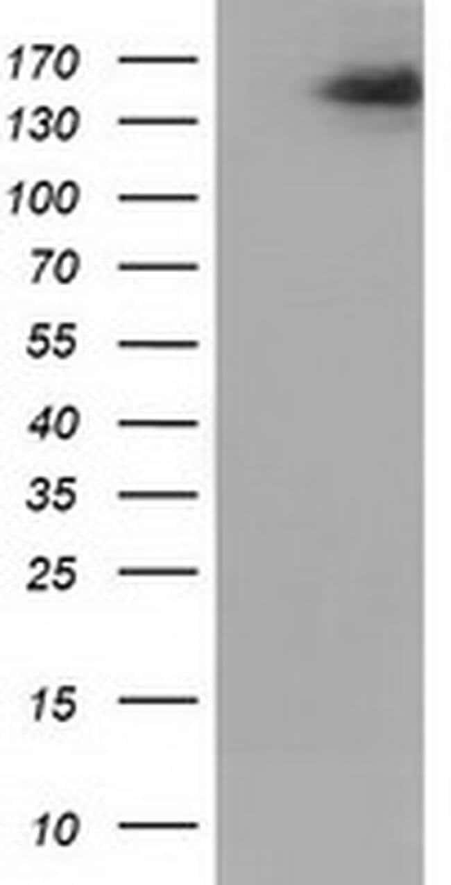 L1CAM Mouse anti-Human, Clone: OTI1D12, liquid, TrueMAB  100 µL; Unconjugated