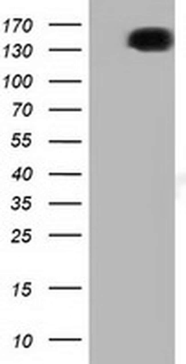 L1CAM Mouse anti-Canine, Human, Clone: OTI2G9, liquid, TrueMAB  100 µL;