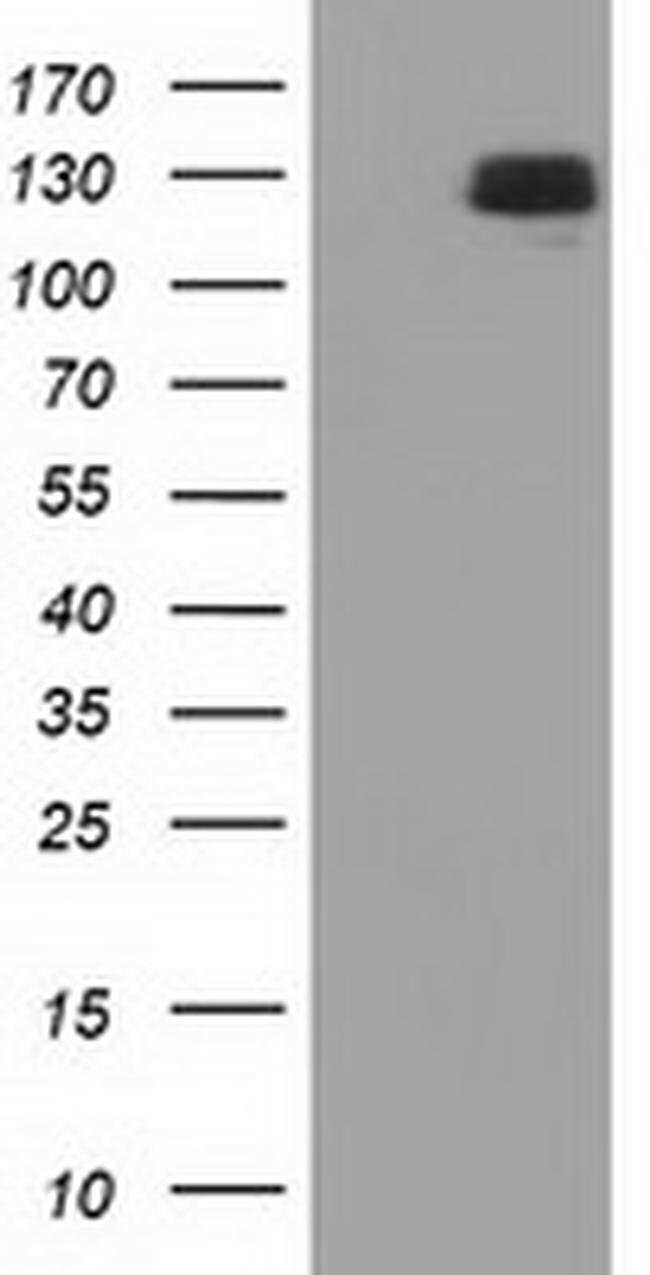 L1CAM Mouse anti-Human, Clone: OTI2H4, liquid, TrueMAB  100 µL; Unconjugated