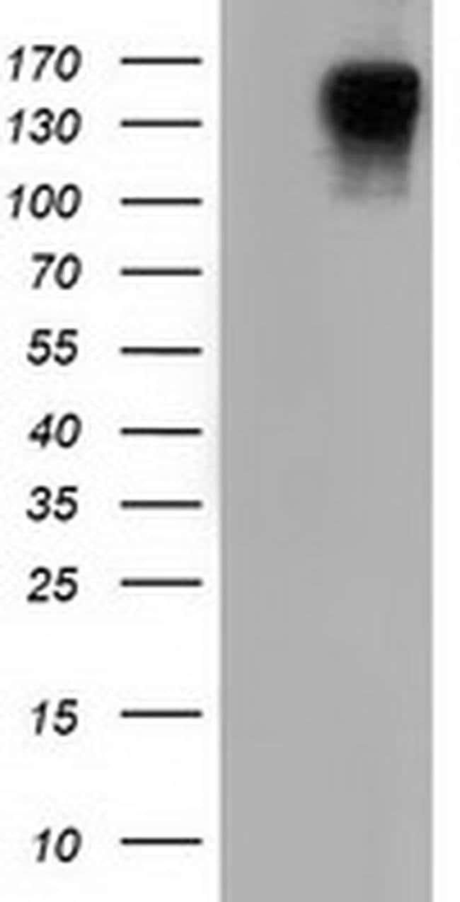 L1CAM Mouse anti-Human, Clone: OTI2H6, liquid, TrueMAB  100 µL; Unconjugated