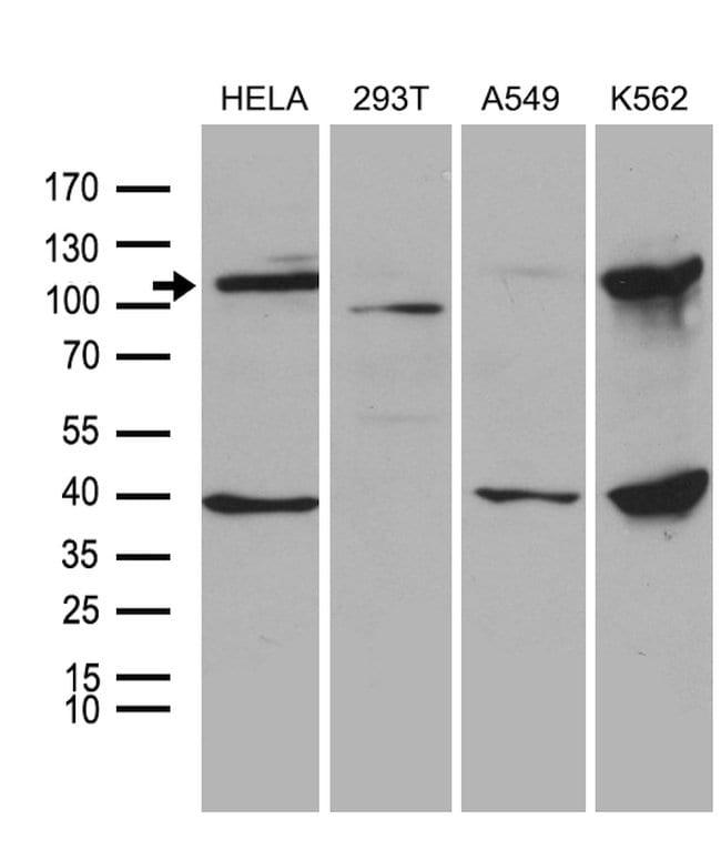 L3MBTL3 Mouse anti-Human, Clone: OTI1H2, lyophilized, TrueMAB  100 µg;