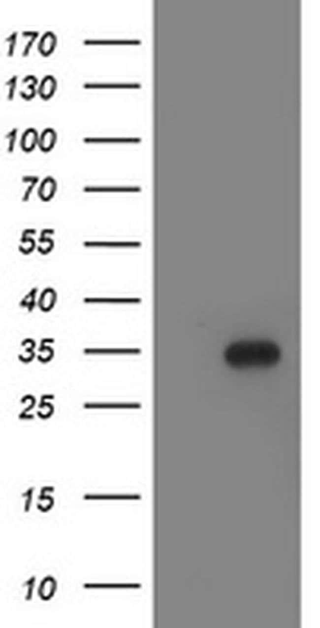 LACTB2 Mouse anti-Human, Clone: OTI1A4, liquid, TrueMAB  100 µL; Unconjugated