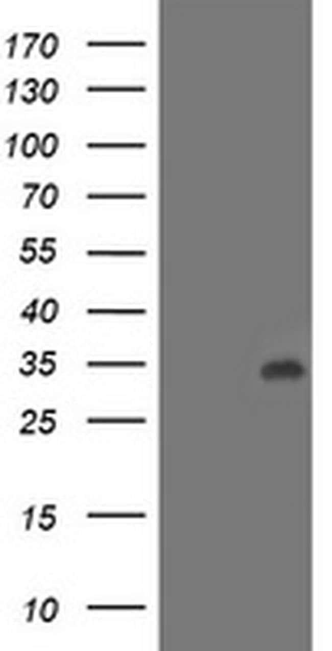 LACTB2 Mouse anti-Human, Clone: OTI4E7, liquid, TrueMAB  100 µL; Unconjugated
