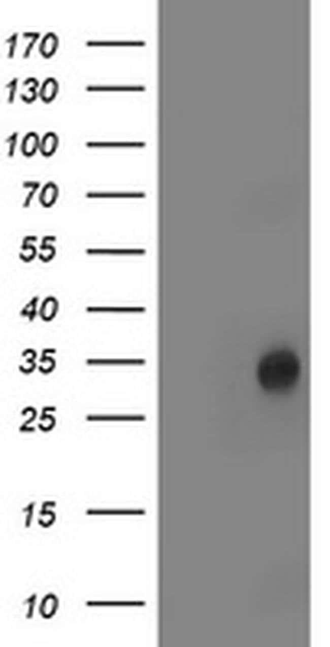LACTB2 Mouse anti-Human, Clone: OTI1A8, liquid, TrueMAB  100 µL; Unconjugated