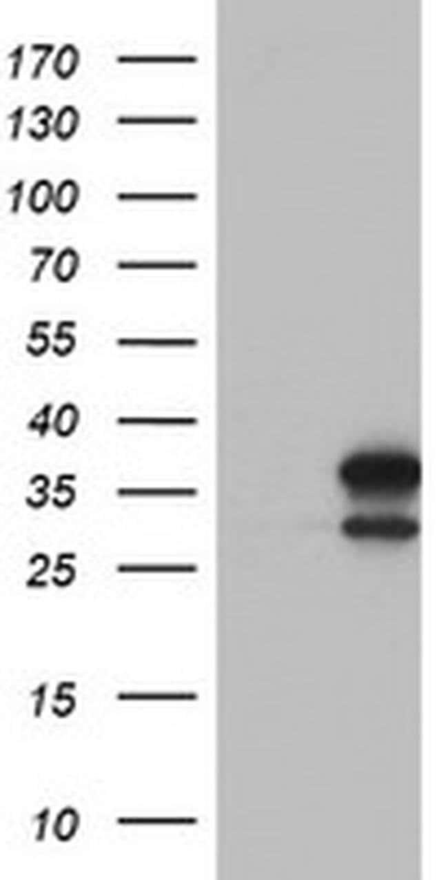 LACTB2 Mouse anti-Canine, Human, Clone: OTI2F9, liquid, TrueMAB  100 µL;