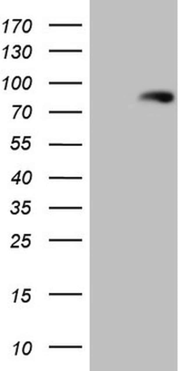 LAG3 Mouse anti-Human, Clone: OTI5C3, lyophilized, TrueMAB  100 µg;