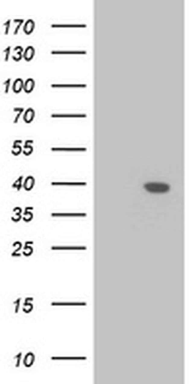 LCMT1 Mouse anti-Human, Clone: OTI1E7, liquid, TrueMAB  100 µL; Unconjugated