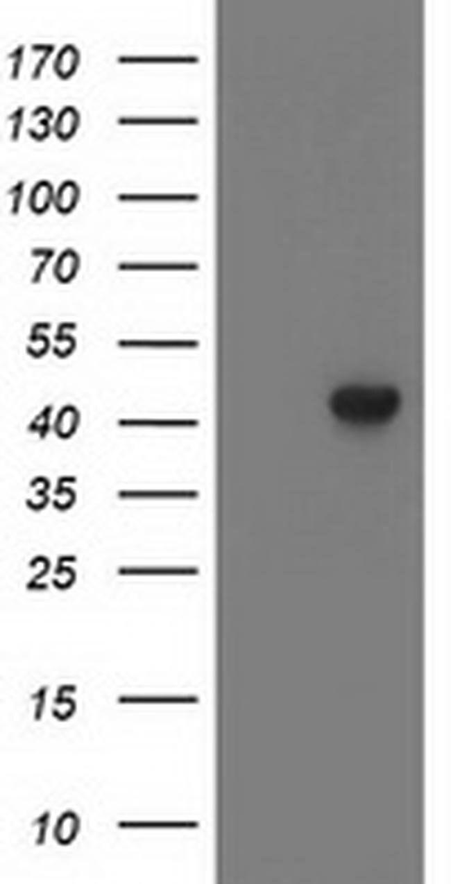 LCMT1 Mouse anti-Human, Clone: OTI3F4, liquid, TrueMAB  100 µL; Unconjugated