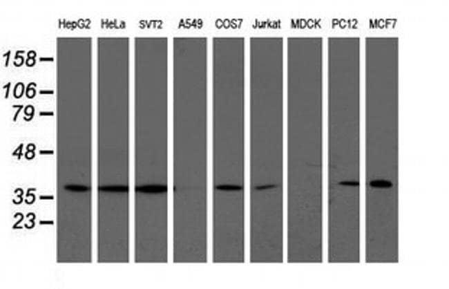 LCMT1 Mouse anti-Human, Mouse, Rat, Clone: OTI2C9, liquid, TrueMAB  30