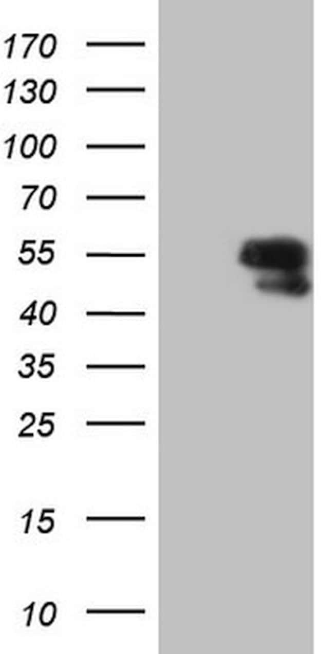 LCOR Mouse anti-Human, Clone: OTI2F8, lyophilized, TrueMAB  100 µg;