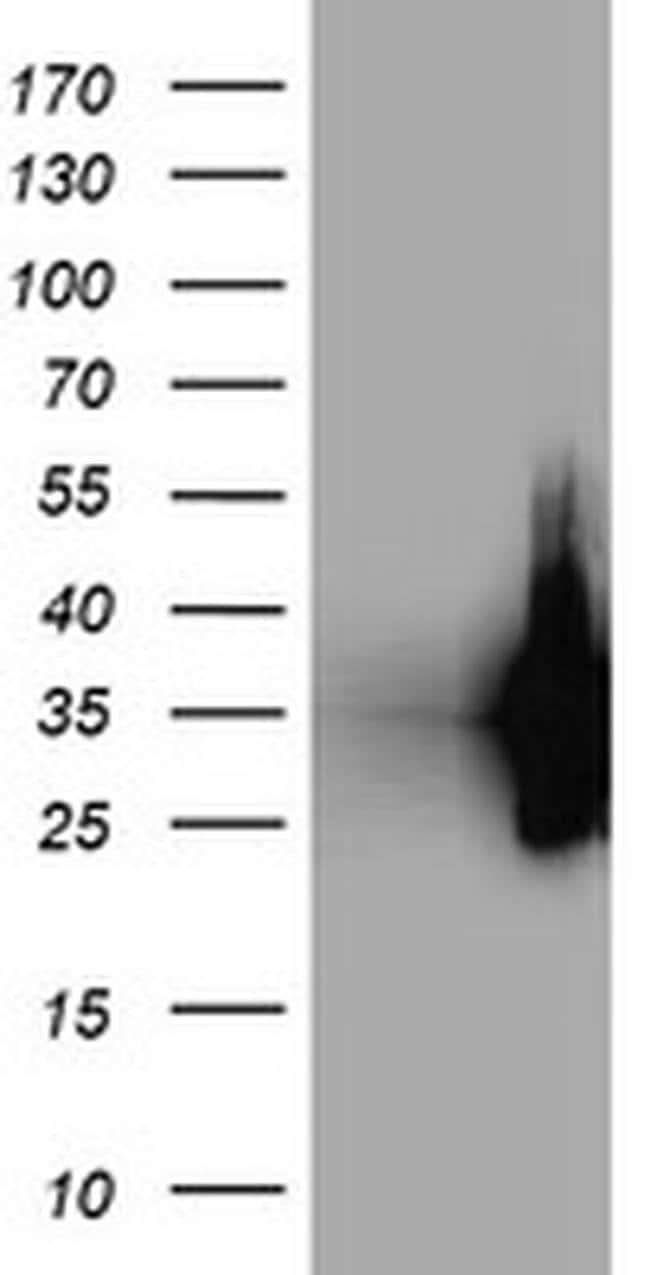 LDLRAP1 Mouse anti-Human, Clone: OTI3H10, liquid, TrueMAB  100 µL;