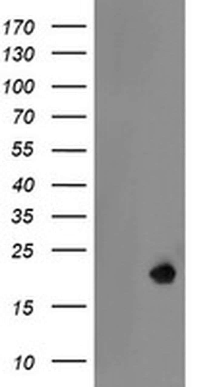 LDOC1 Mouse anti-Human, Clone: OTI1A2, liquid, TrueMAB  100 µL; Unconjugated
