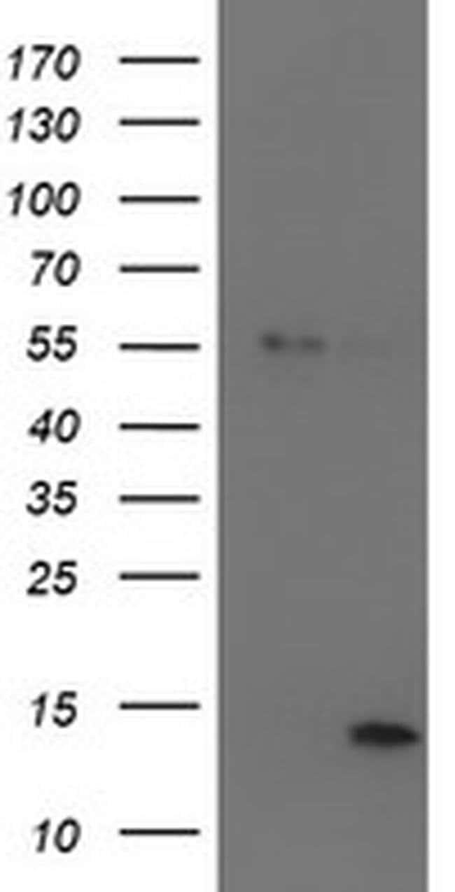 LECT2 Mouse anti-Human, Clone: OTI2A11, liquid, TrueMAB  100 µL; Unconjugated