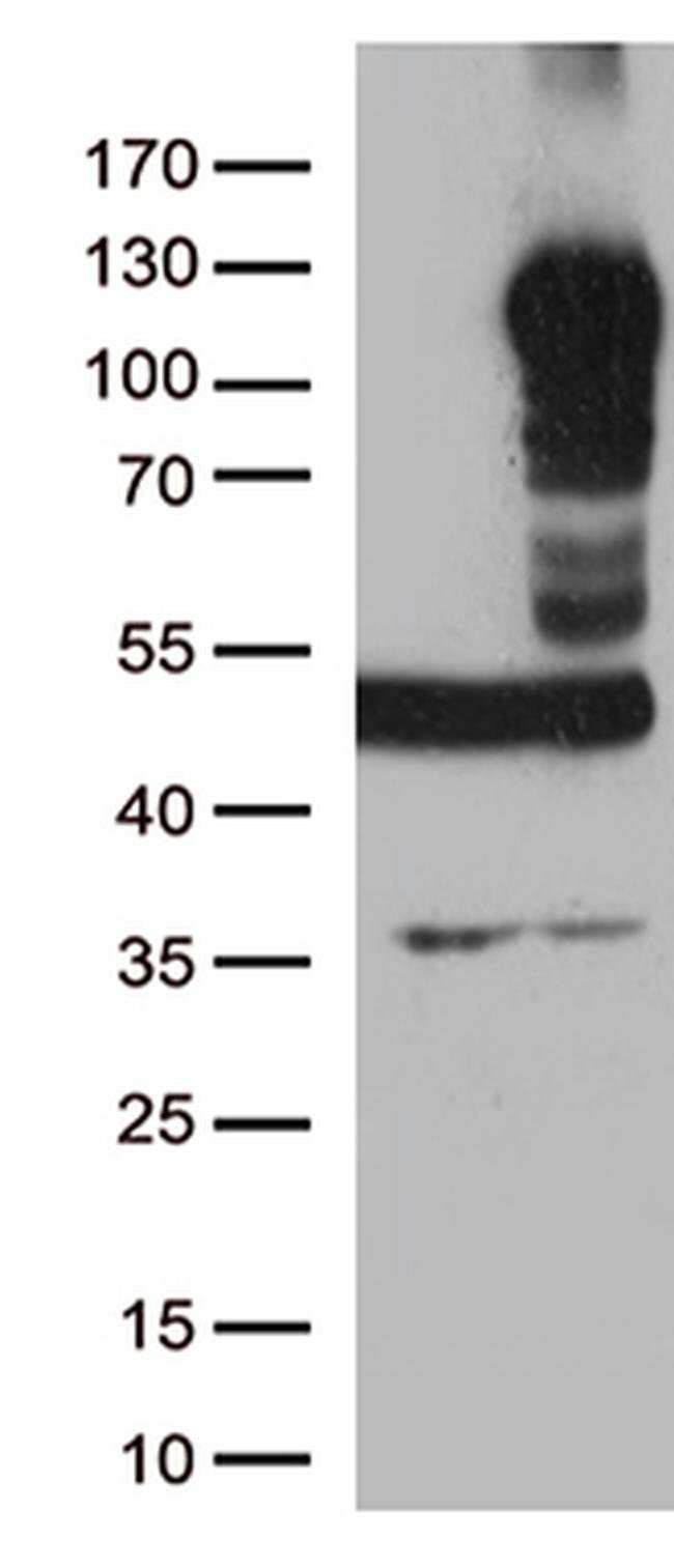 LEMD3 Mouse anti-Canine, Human, Clone: OTI6C10, liquid, TrueMAB  100 µL;