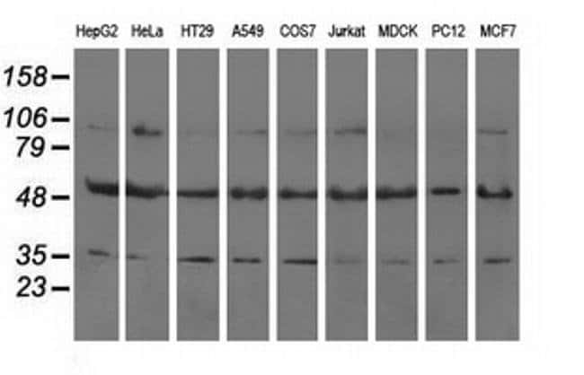 LEMD3 Mouse anti-Human, Clone: OTI3C8, liquid, TrueMAB  100 µL; Unconjugated