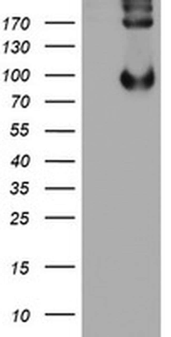 LEPRE1 Mouse anti-Human, Clone: OTI1A1, liquid, TrueMAB  100 µL; Unconjugated