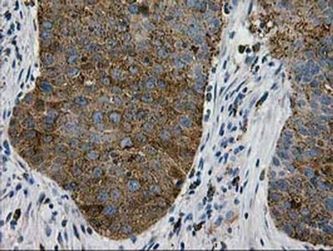 LGALS3BP Mouse anti-Human, Clone: OTI3D6, liquid, TrueMAB  100 µL;