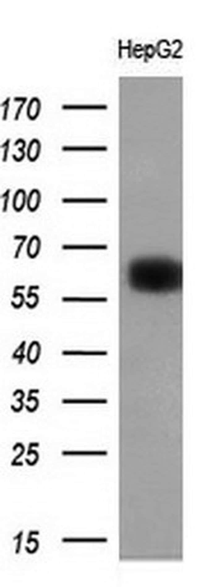 LGALS3BP Mouse anti-Human, Clone: OTI3G8, liquid, TrueMAB  100 µL;