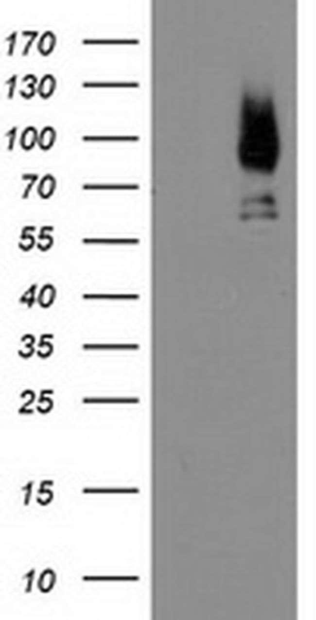 LGALS3BP Mouse anti-Human, Clone: OTI5E3, liquid, TrueMAB  100 µL;