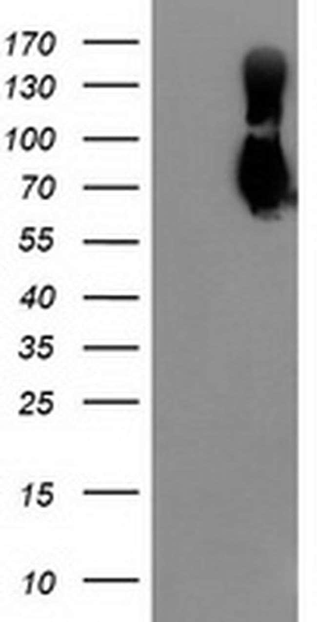 LGALS3BP Mouse anti-Human, Clone: OTI2B1, liquid, TrueMAB  100 µL;