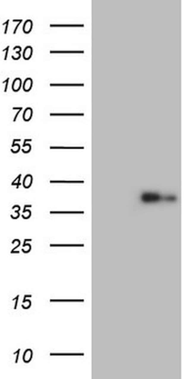 LGALS9 Mouse anti-Human, Clone: OTI8B11, lyophilized, TrueMAB  100 µg;