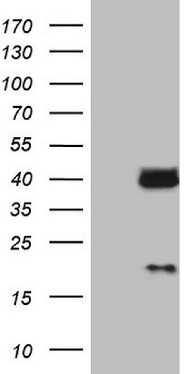 LGALS9 Mouse anti-Human, Clone: OTI19F7, lyophilized, TrueMAB  100 µg;