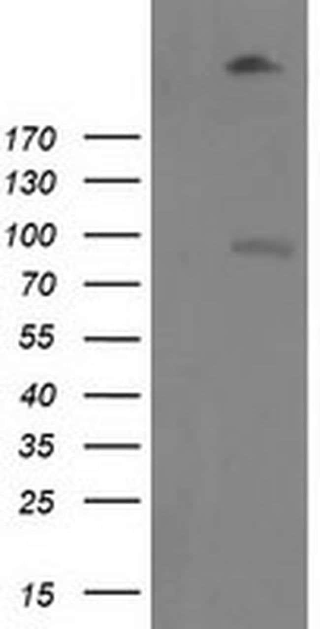 LGR5 Mouse anti-Human, Clone: OTI1C8, liquid, TrueMAB  100 µL; Unconjugated
